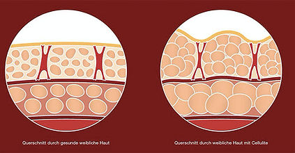 Alidya Visualisierung Cellulite