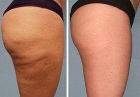 Alidya Anti-Cellulite Behandlung Oberschenkel