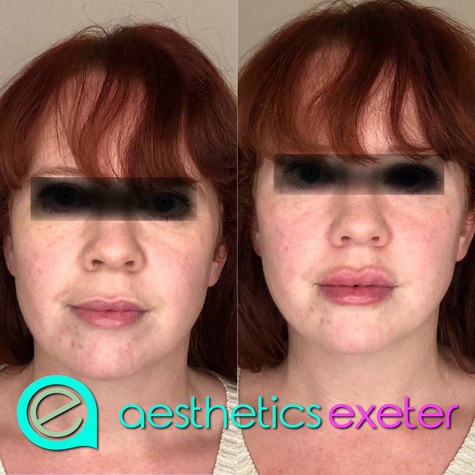 Dermal Filler to cheeks, lips and naso labial folds
