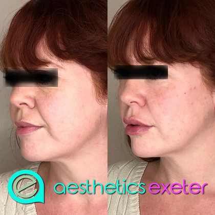 Cheek, lip and naso-labial lines treated with dermal filler