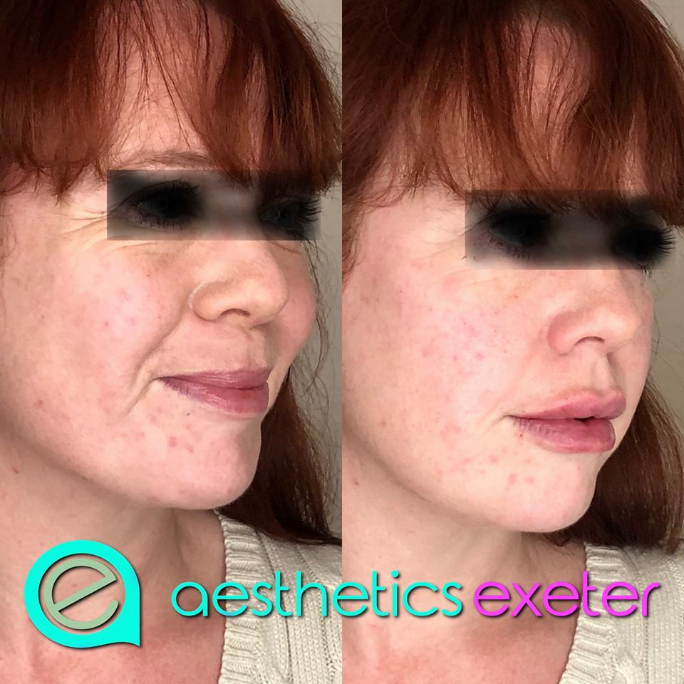 Lips, cheeks, naso labial folds and marionette lines treated with dermal filler
