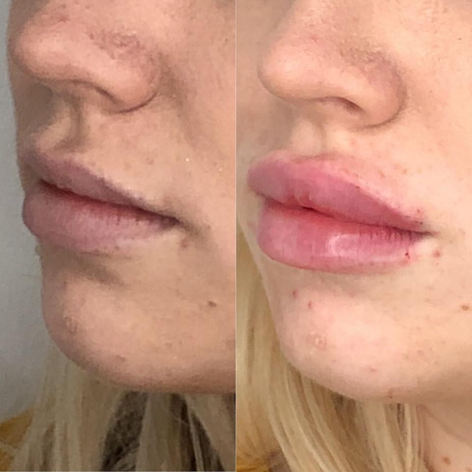 Lip filler - 1ml Belotero Intense - Cannula used