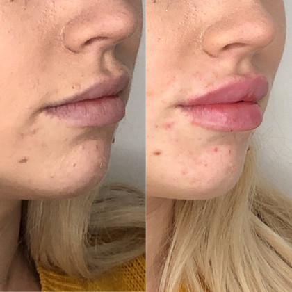 Lip filler 1ml Belotero Intense -- cannula used.