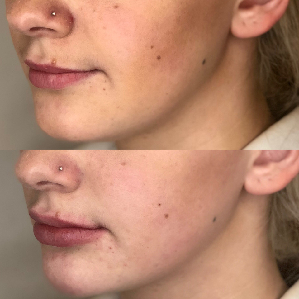"Lip Augmentation with demal filler or ""lip filler'."