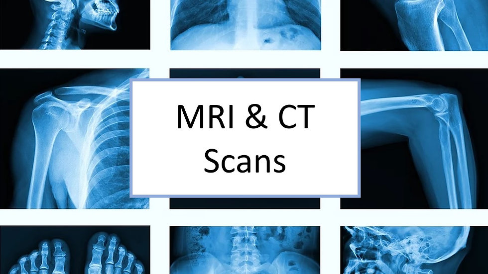 MRI and CT scans