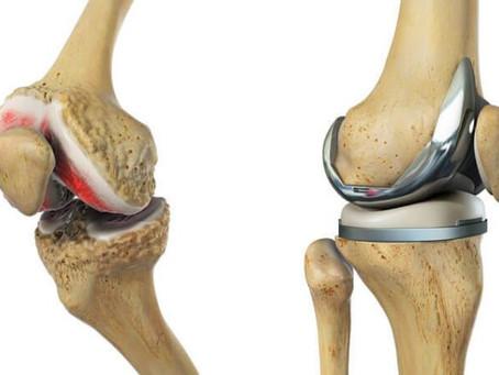Cirurgia de joelho: quando é indicada, tipos e recuperação