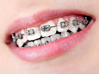 Kā norit zobu taisnošana?