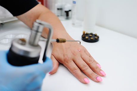 Removal of warts in dermatology clinic.