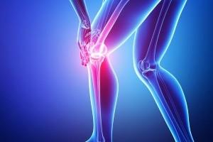 L'Arthrose: qu'est ce que c'est? Comment soigner les douleurs de l'Arthrose?