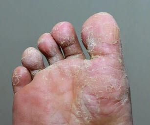 athletes-foot-tinea-pedis-fungal-260nw-1