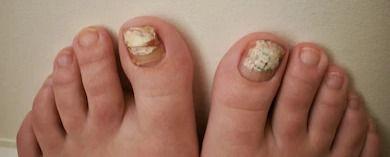 fungus-on-both-big-toenails-260nw-174569