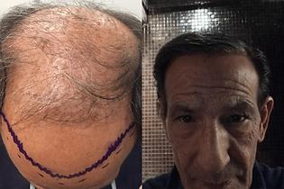 avant-après-greffe-cheveux-turquie-5.png
