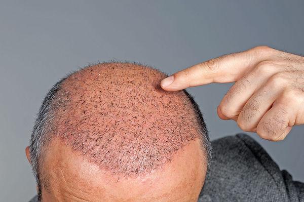 Pourquoi la perte de cheveux se produit-elle après une greffe de cheveux