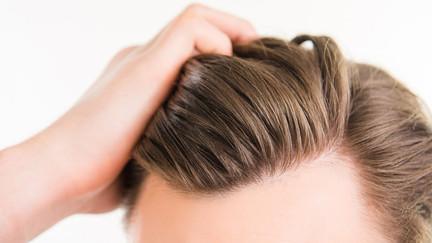Comment laver ses cheveux après une greffe de cheveux en Turquie avec Turkisme Medical