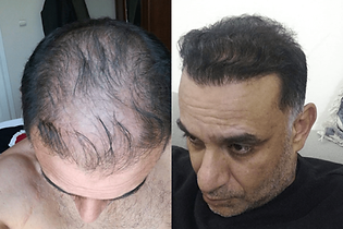 avant-après-greffe-cheveux-turquie-6.png