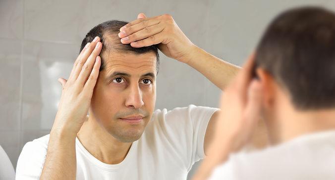 Forum sur la greffe de cheveux.jpg