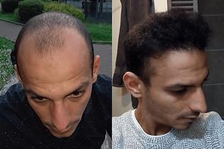 avant-après-greffe-cheveux-turquie.png