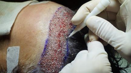 Les étapes de la greffe de cheveux DHI - Quels sont ses avantages ?