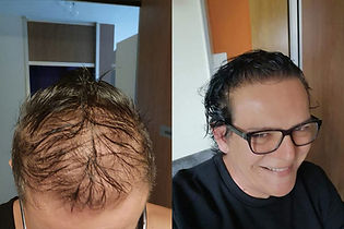 greffe-de-cheveux-turquie-avant-apres-ca