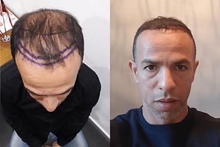 avant-après-greffe-cheveux-turquie-4.png