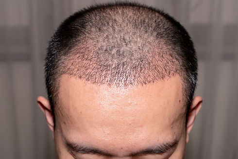 Greffe de cheveux avant et après - évolution mois par mois.jpg