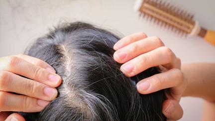 Comment renforcer les cheveux ? 7 formes différentes