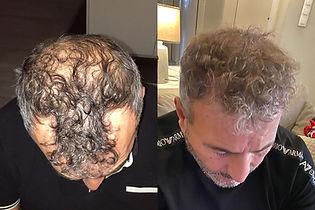 greffe-de-cheveux-turquie-avant-apres-ré