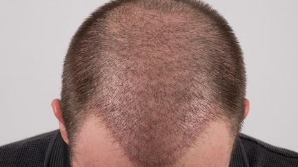 Quelle est la différence entre les méthodes de greffe de cheveux FUE et DHI ?