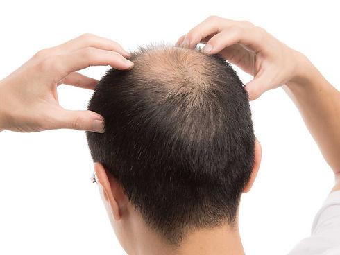 Calvitie du vertex la greffe de cheveux est-elle la solution.jpg