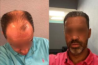 greffe-de-cheveux-turquie-résultat.jpg