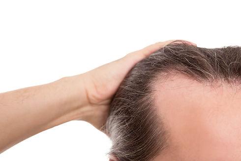 Le meilleur pays pour la greffe de cheveux