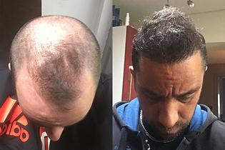 avant-après-greffe-cheveux-turquie-7.png