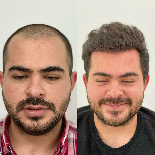 Greffe de cheveux avant et après - 4000 greffons
