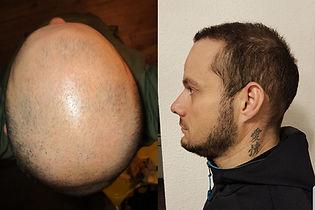 greffe-de-cheveux-turquie-avant-apres-sÃ