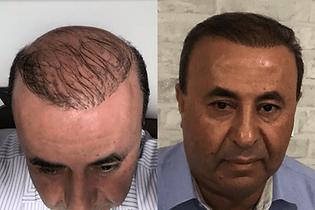 avant-après-greffe-cheveux-turquie-2.png