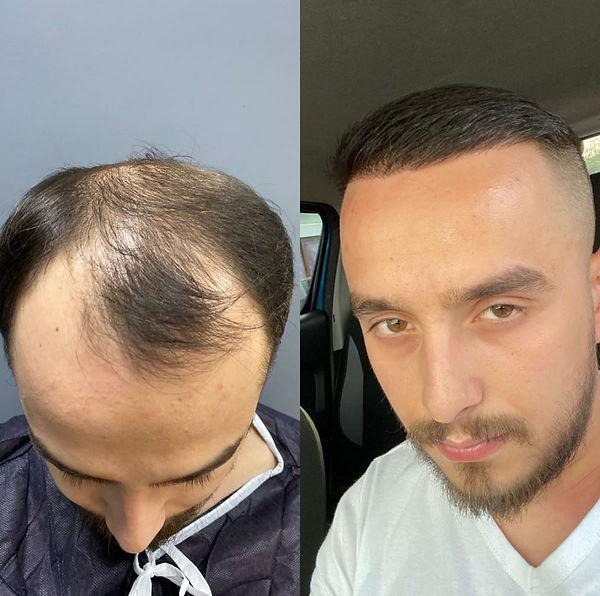 Greffe de cheveux avant et après - 4200 greffons