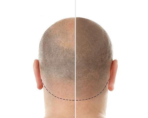 Dermopigmentation  Micropigmentation après une greffe de cheveux ratée - masquer une calvi