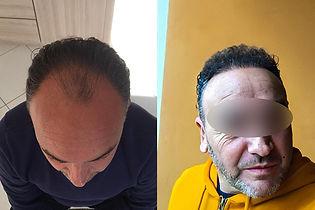 greffe-de-cheveux-turquie-avant-apres-2.