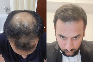 avant-après-greffe-cheveux-turquie-3.png