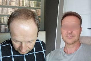 greffe-de-cheveux-turquie-resultat.jpg