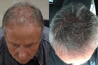 avant-après-greffe-cheveux-turquie-8.png