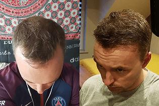 Julien-greffe-de-cheveux.jpg
