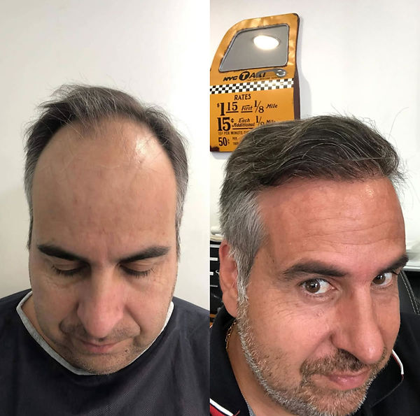 Greffe de cheveux avant et après - 4500 greffons