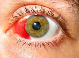 subconjunctivale bloeding