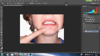 Got Acne? Photoshop Tricks!