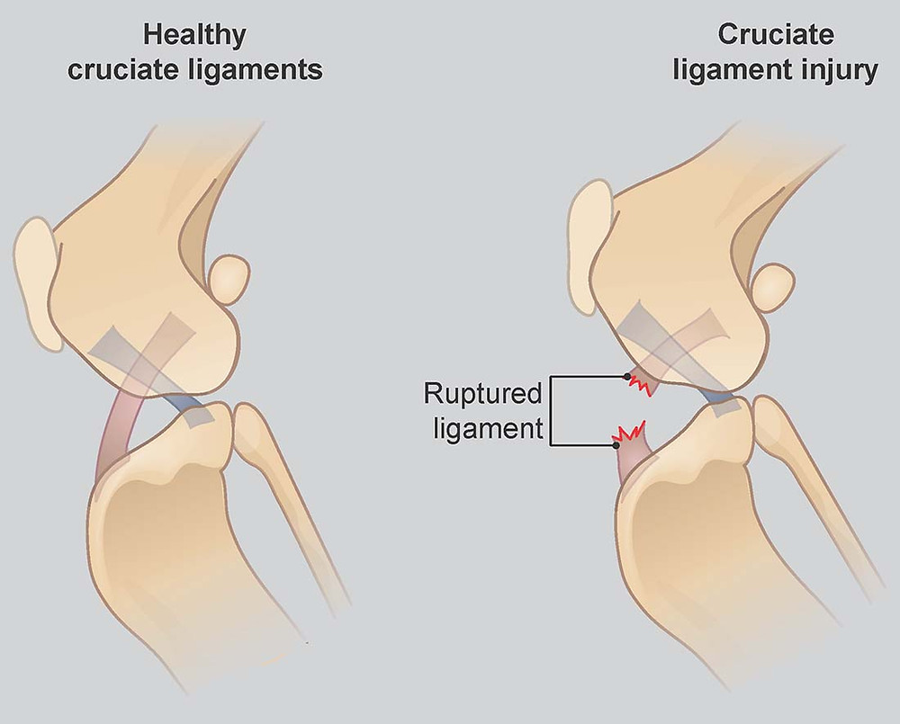 Picture of a healthy and damaged Cruciate Ligament and its location