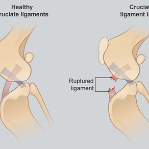 What is the Cranial Cruciate Ligament ?