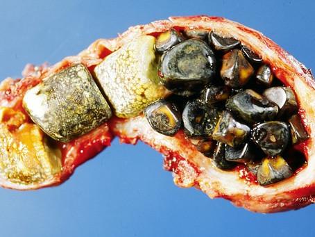 תזונה לניקוי אבנים מכיס המרה