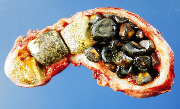 טיפול טבעי לסילוק אבנים מכיס המרה