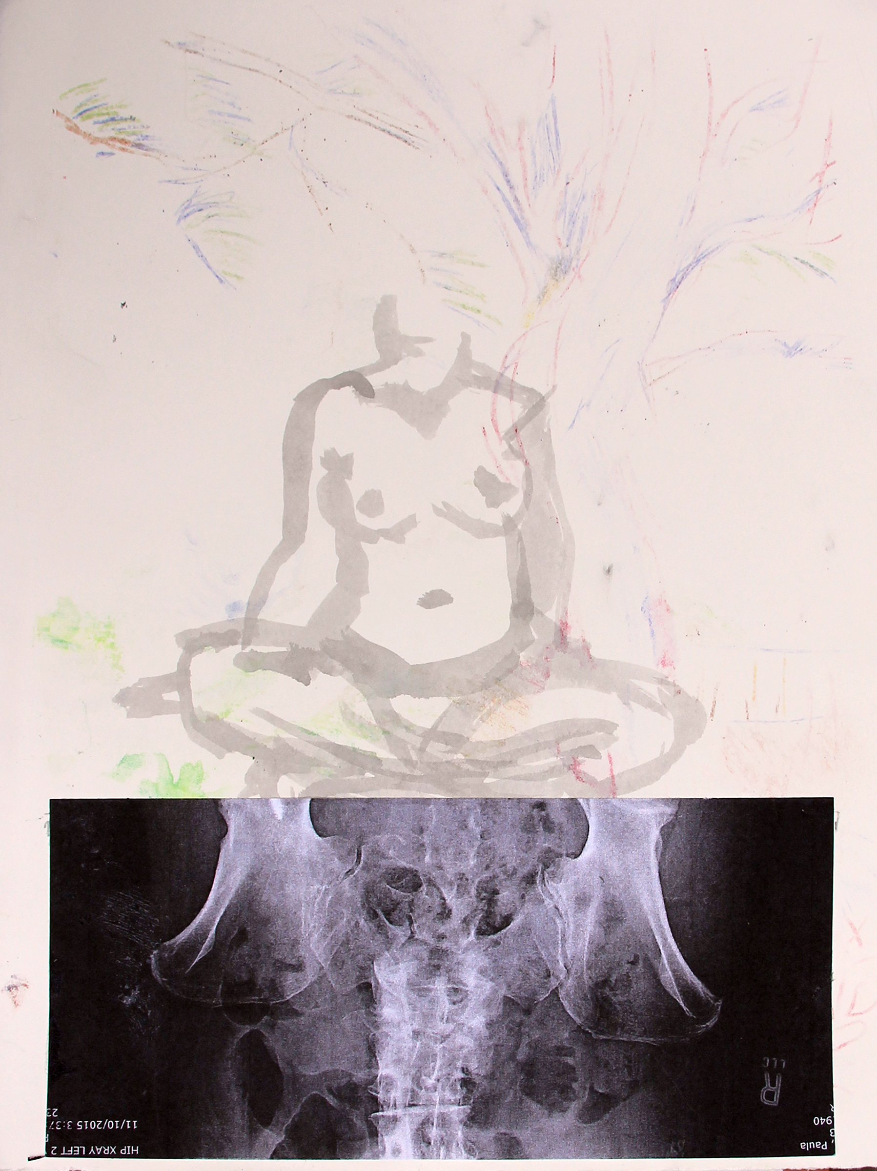 figure xray collage
